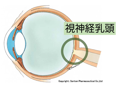 リセット 眼 圧